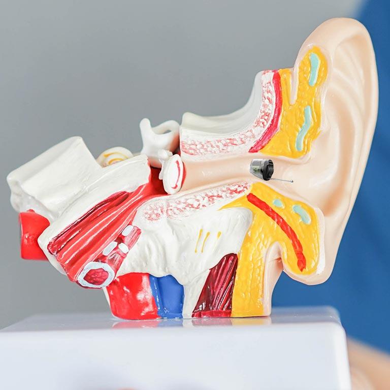 IIC hearing aid in human ear anatomy model